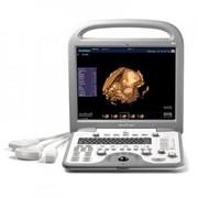 УЗИ аппараты SonoScape